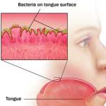 bacteriën tong